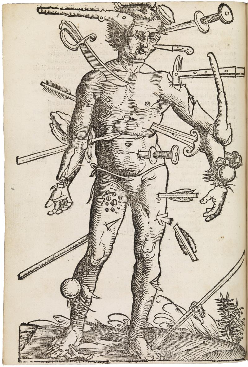 The Wound Man from Hans von Gersdorff_s Feldbuch der Wundarznei (1530